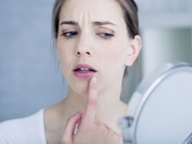 shutterstock_B2 pimple at mouth