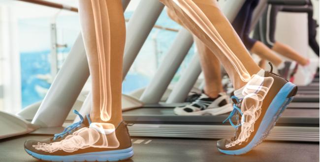 bone health 062817