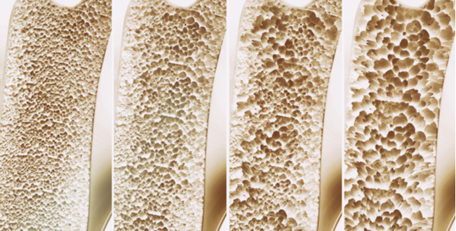 osteoprosis 061217