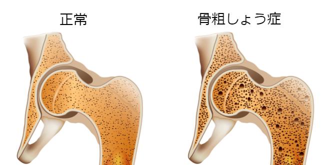 osteoperosis-calcium 070317