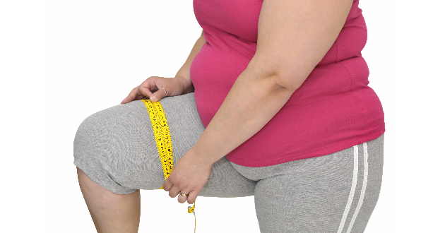 Obesity 630
