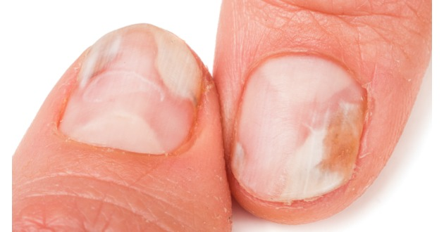 onychomycosis finger nail 630