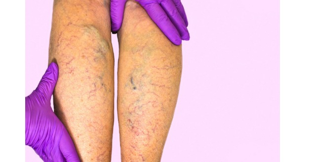 venous insufficiency 630