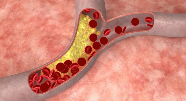cholesterol in artery 10418-330