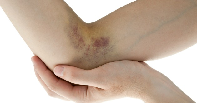 hematoma on woman arm near elbow