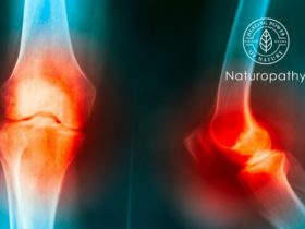 knee joint pain cause by knee truma,gout,rheumatoid,osteoarthritis of knee