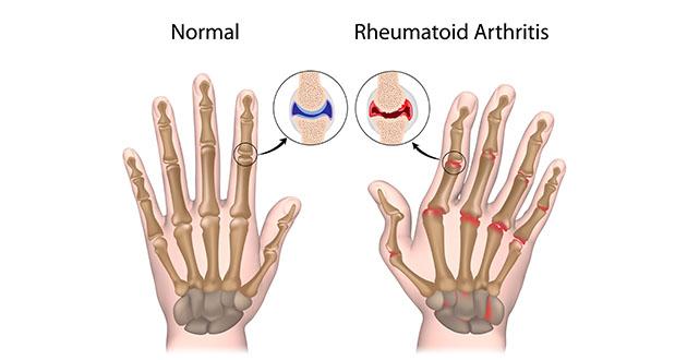 rhumatoid arthritis-630
