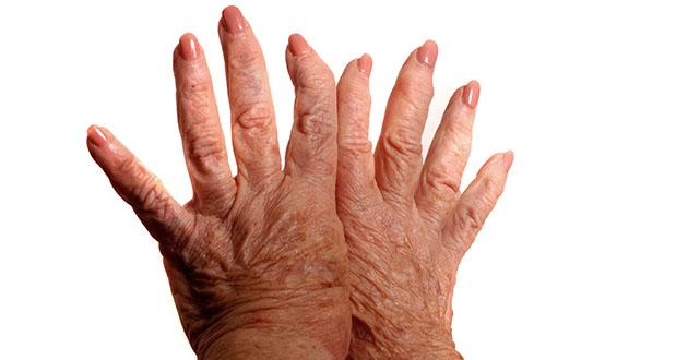 RA hands 1-630
