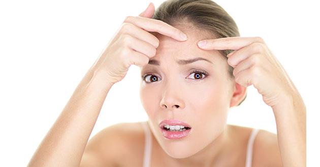 acne-630