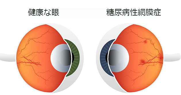 diabetic retinopathy-630