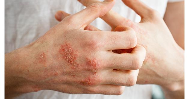eczema-630