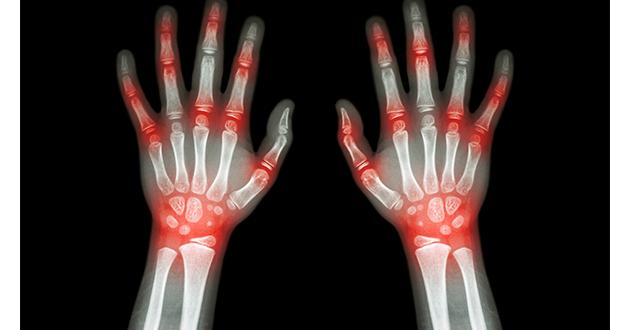 rhumatoid arthritis xray-630