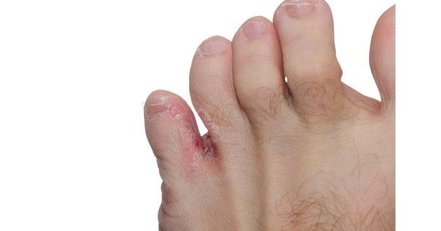 athlete's foot 070618-630