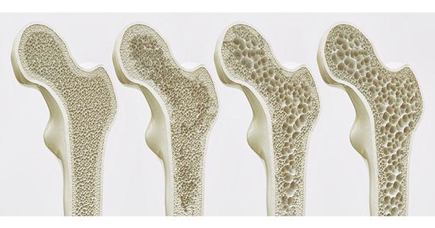 osteoperosis 082318-630