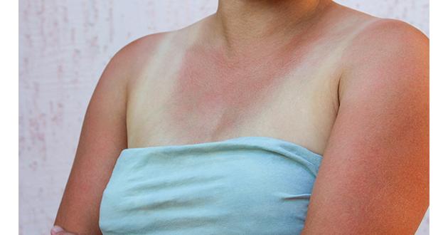 sun burn woman-630