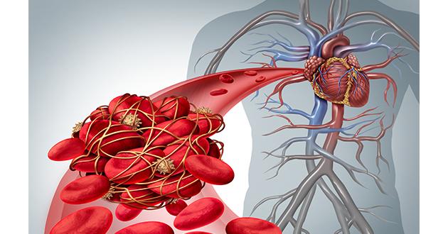 blood clots-630