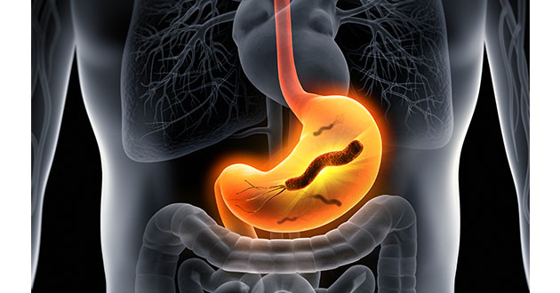 pylori in stomach-630