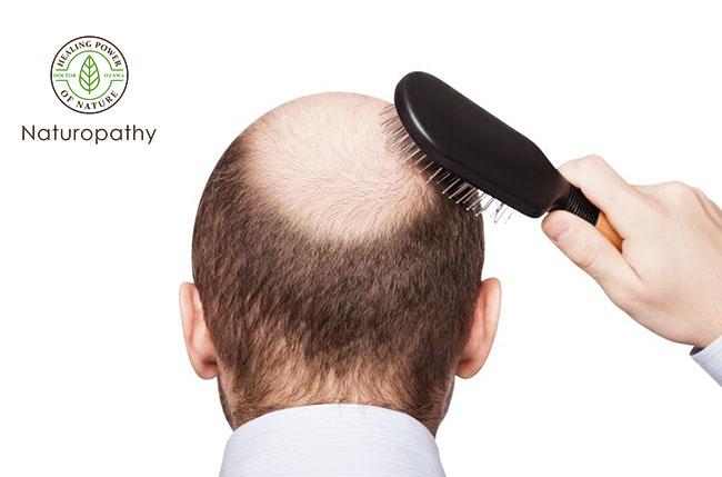 alopecia man-eyecatch