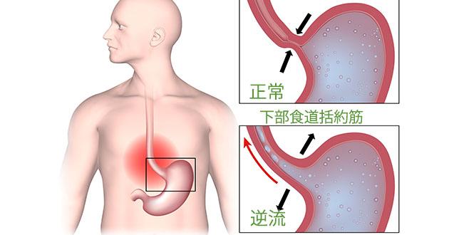 胸焼け・逆流性食道炎とは?