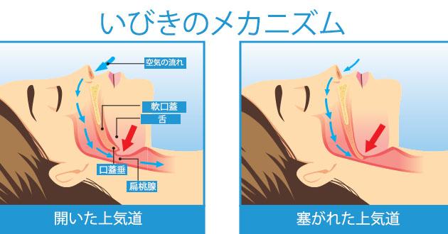 snoring mechanism-630