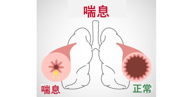asthma illustration-630