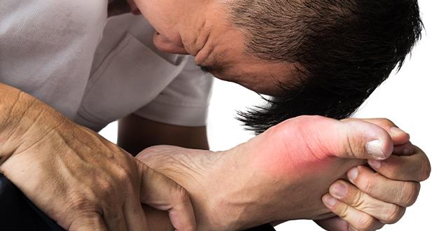 ギロイは痛風の症状改善に効果的