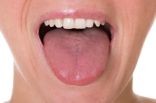 tongue M