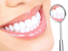white teeth m
