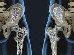 osteoporosis M