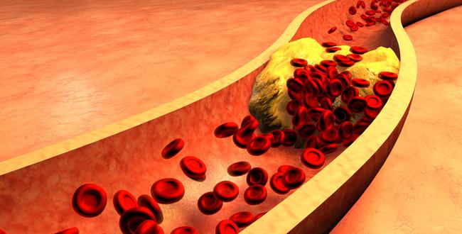 ナイアシンのニコチン酸はコレステロール値、中性脂肪値を下げるのに効果的