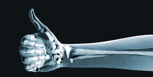 ウチワサボテンは骨の健康に効果的