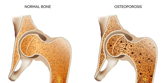 骨密度が低くなり、骨が弱く、折れやすくなる