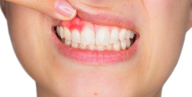 カレンデュラは、歯茎の腫れ、歯肉炎や虫歯の予防に効果的