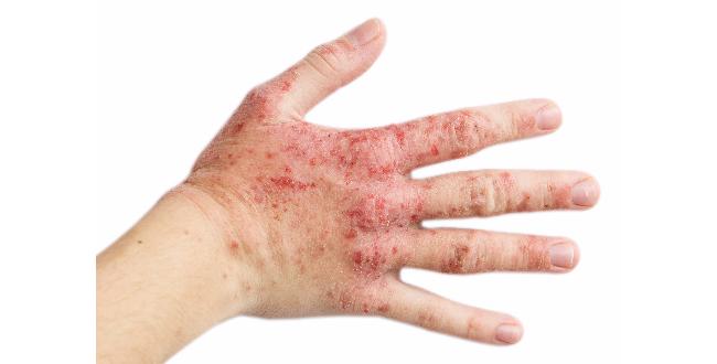 シボ-SIBOが引き起こしてしまうリスクがある疾患とは?