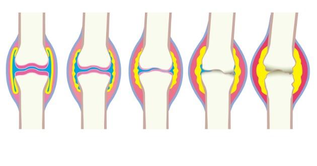 スルフォラファンは、関節炎に効果的