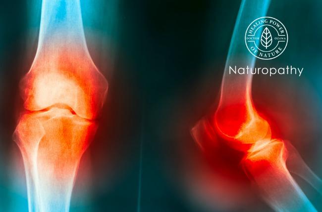 【関節炎】の種類は100以上も!性別や年齢を問わず起こる疾患。