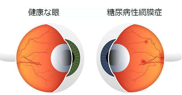 糖尿病によって起こる眼の病気