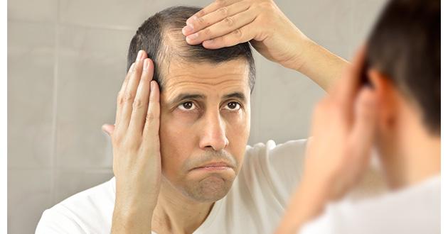 髪の健康にはどんな食品や成分が良いの?