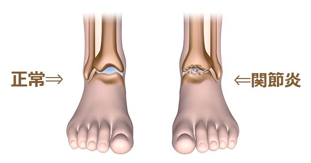 関節炎は関節が炎症を起こし、その周辺が腫れたり痛みを伴う疾患