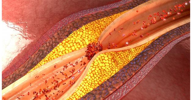 MGP(マトリックスGlaプロテイン)というタンパク質は、血管にカルシウムが付着するのを防ぐ