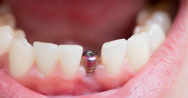 インプラントで使われるチタン、金歯など他の金属は、アマルガムがそれらの金属に触れる可能性があり注意が必要
