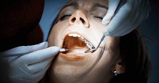 虫歯の治療に使われるアマルガムの50%は水銀