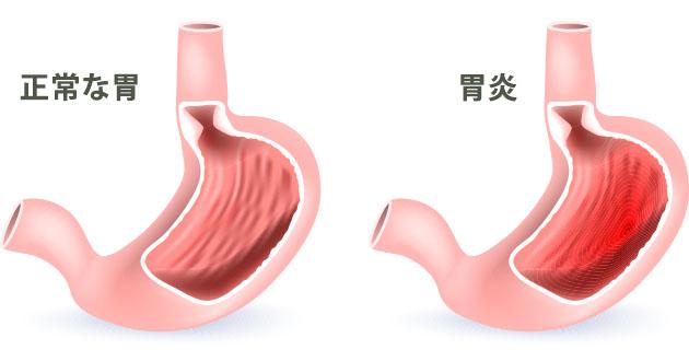 胃炎は胃の粘膜がただれたり、炎症を起こしている状態