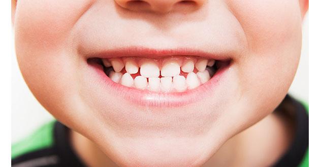 healthy teeth kid-630