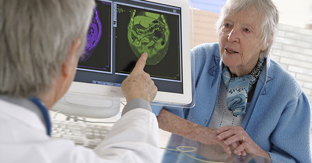イタドリの根に含まれるレスベラトロールが認知障害の予防に効果的