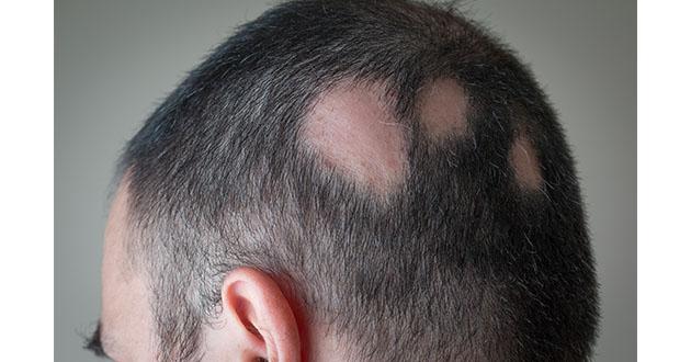円形脱毛症は自己免疫疾患