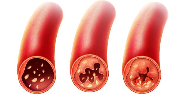 セルフヒールの抗炎症作用