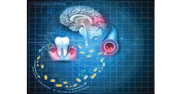 歯周病はアルツハイマーの原因になりえる