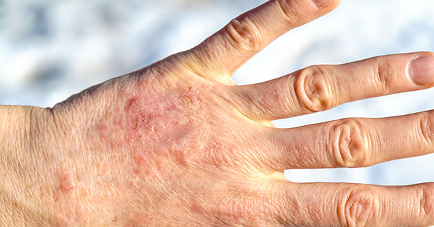 乾燥肌対策はハンドオイルが効果的