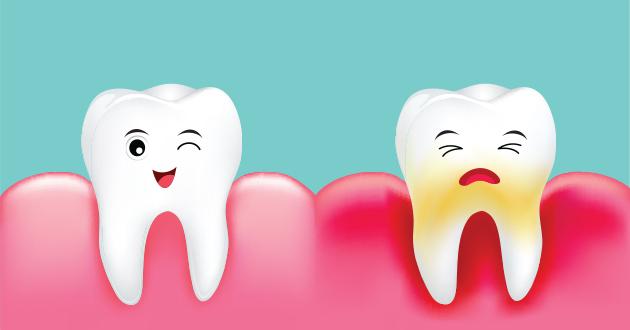 プラークは歯周病になるリスクを抱えてる